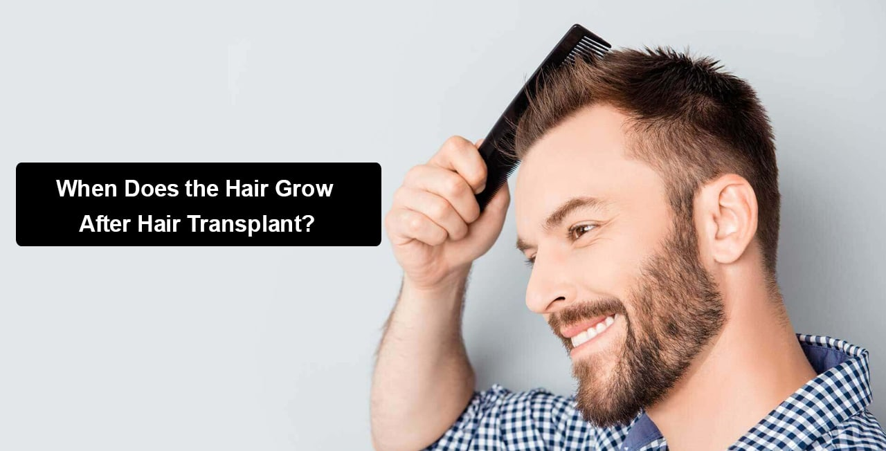 When Does the Hair Grow After Hair Transplant