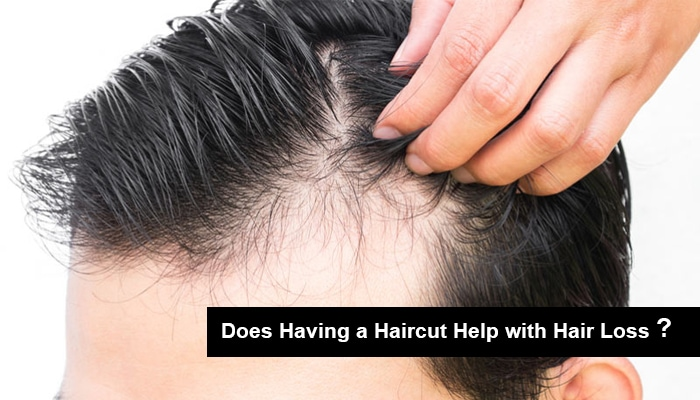 Does Having a Haircut Help with Hair Loss